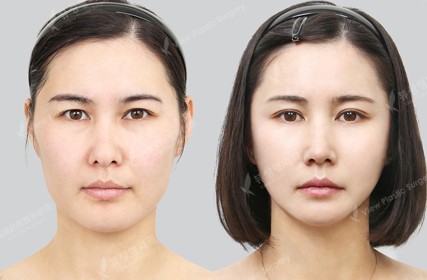 How One Can Do Round Nose Nearly Immediately
